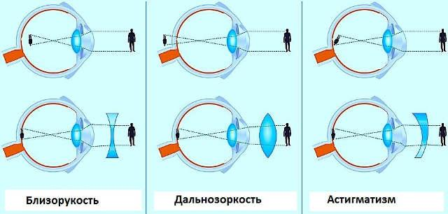Временная потеря зрения одного глаза