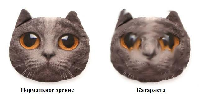 Все о катаракте глаза: симптомы, диагностика и лечение заболевания ...