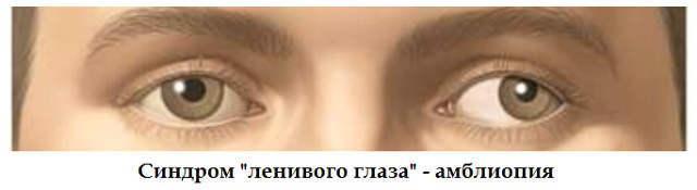 Синдром «ленивого глаза» у детей и взрослых – причины и лечение ...