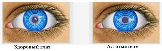 Астигматизм глаз - степени