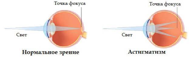 классификация астигматизма