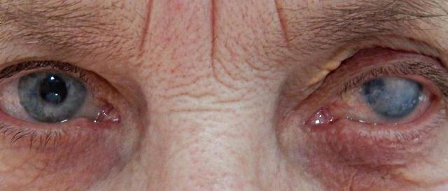 Бельмо - помутнение роговицы глаза