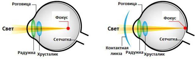 Близорукость (миопия) - контактные линзы