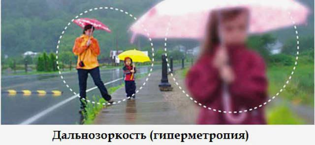 Гиперметропия (дальнозоркость) у детей и взрослых