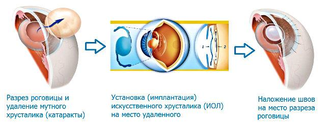 ЭЭК - экстракапсулярная экстракция катаракты