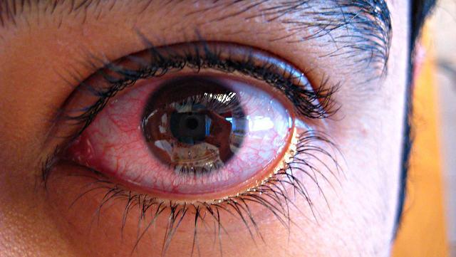 Эписклерит глаз: причины, симптомы и эффективные методы лечения ...
