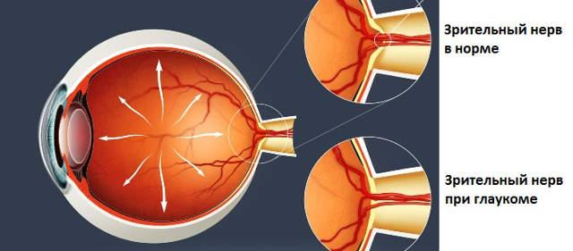 an overview of glaucoma disease and its four major types Glaucoma overview and facts glaucoma refers to a group of disorders that there are four major types of glaucoma: angle-closure parkinson's disease post-polio.