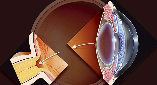 Глазное давление при глаукоме, норма глазного давления при ...
