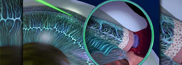 Лазерное лечение глаукомы - методы