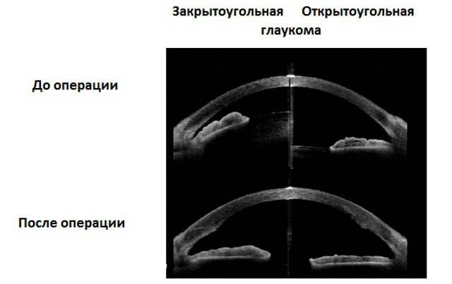 Закрытоугольная и открытоугольная формы глаукомы