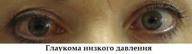 Глаукома - внутриглазное давление