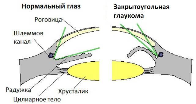 Закрытоугольная глаукома - причины возникновения, симптомы и ...