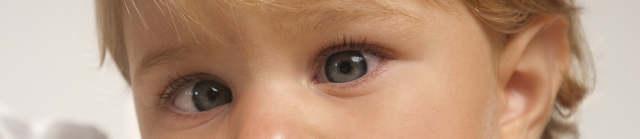 Причины и лечение косоглазия у ребенка