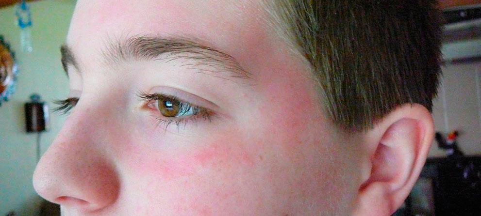 Красные пятна под глазами - все причины и эффективное лечение ...