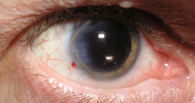 Осложнения лазерной коррекции зрения (возможные риски ...