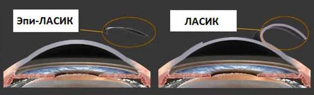 Эпи-ЛАСИК - лазерная коррекция зрения