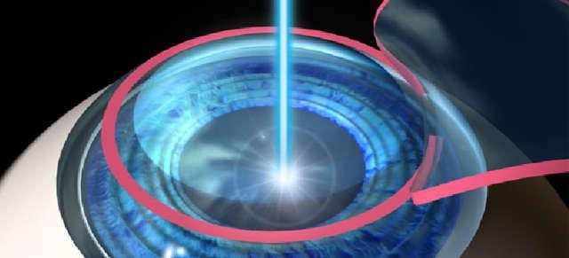 Лазерная коррекция зрения - ограничения