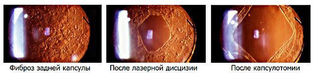 Magvak petrezselyem a prostatitis receptből A prosztatitis és az urethritis jelei