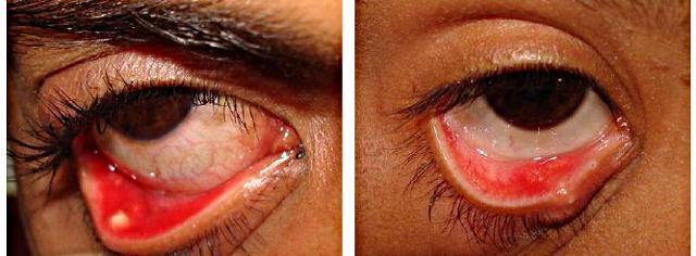 Мейбомит верхнего или нижнего века глаза - причины и эффективные ...