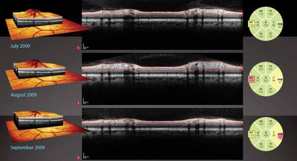 ОКТ сетчакти (макулы), диска зрительного нерва, роговицы