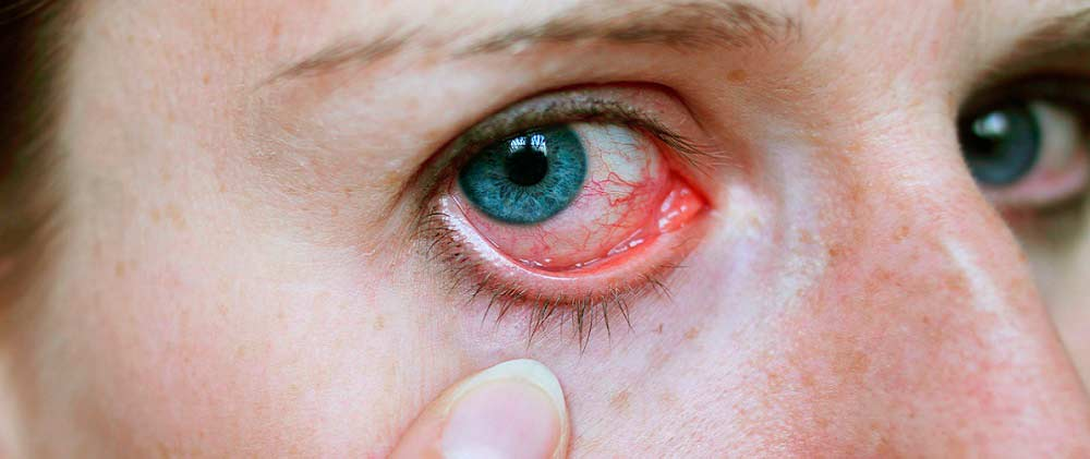 Глаза щиплет и слезятся - причины и лечение на сайте ...
