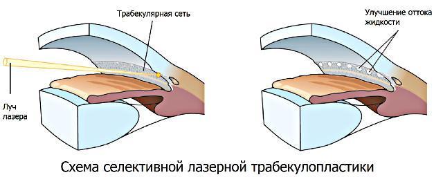 Селективная лазерная трабекулопластика (СЛТ) при глаукоме