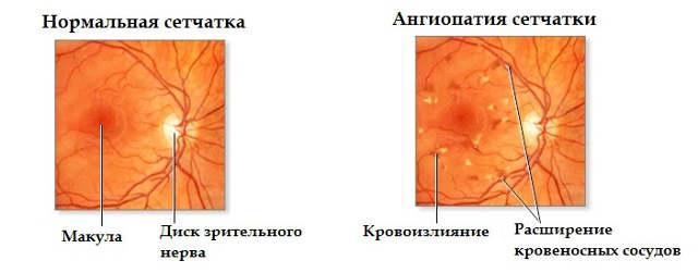 гипертензивная ангиопатия сетчатки