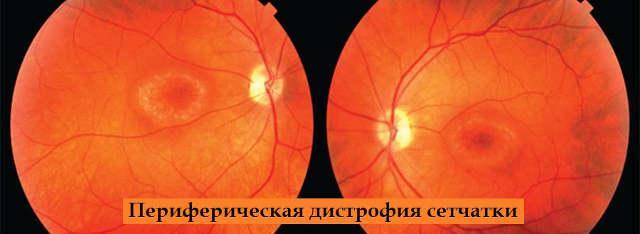Периферические дистрофии сетчатки обоих глаз