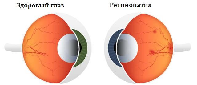 Ретинопатии сетчатки глаза - стадии