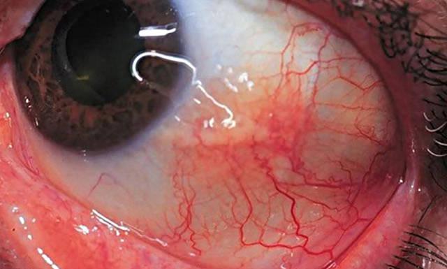 Склерит глаз: причины, симптомы и эффективные методы лечения ...