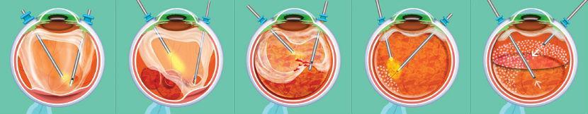 отслойка мембраны стекловидного тела