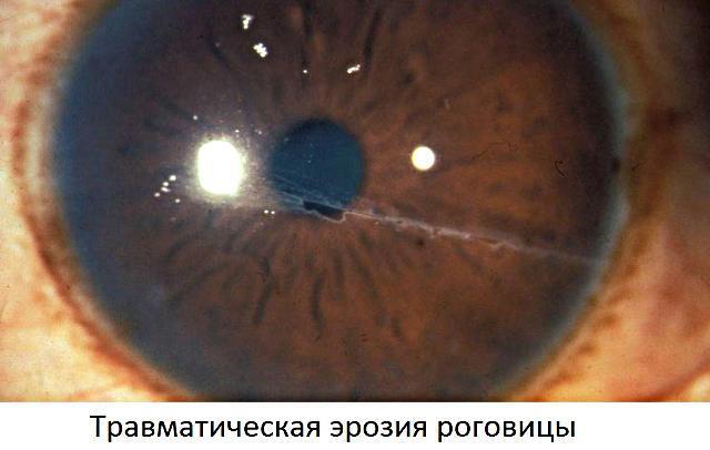 Эрозия роговицы глаза - травматическая и рецидивирующая