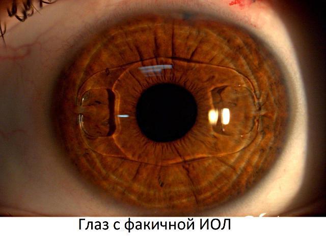 Факичные интраокулярные линзы (ИОЛ)