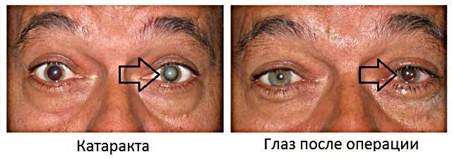 искусственный хрусталик глаза после операции