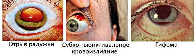 Контузия (ушиб) глаза: симптомы и лечение, степени и негативные ...