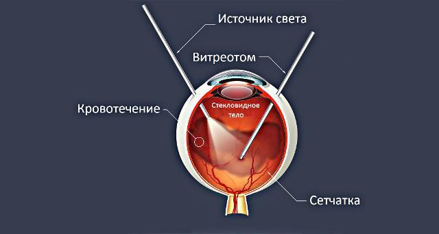 Витреоретинальная хирургия глаза в Москве